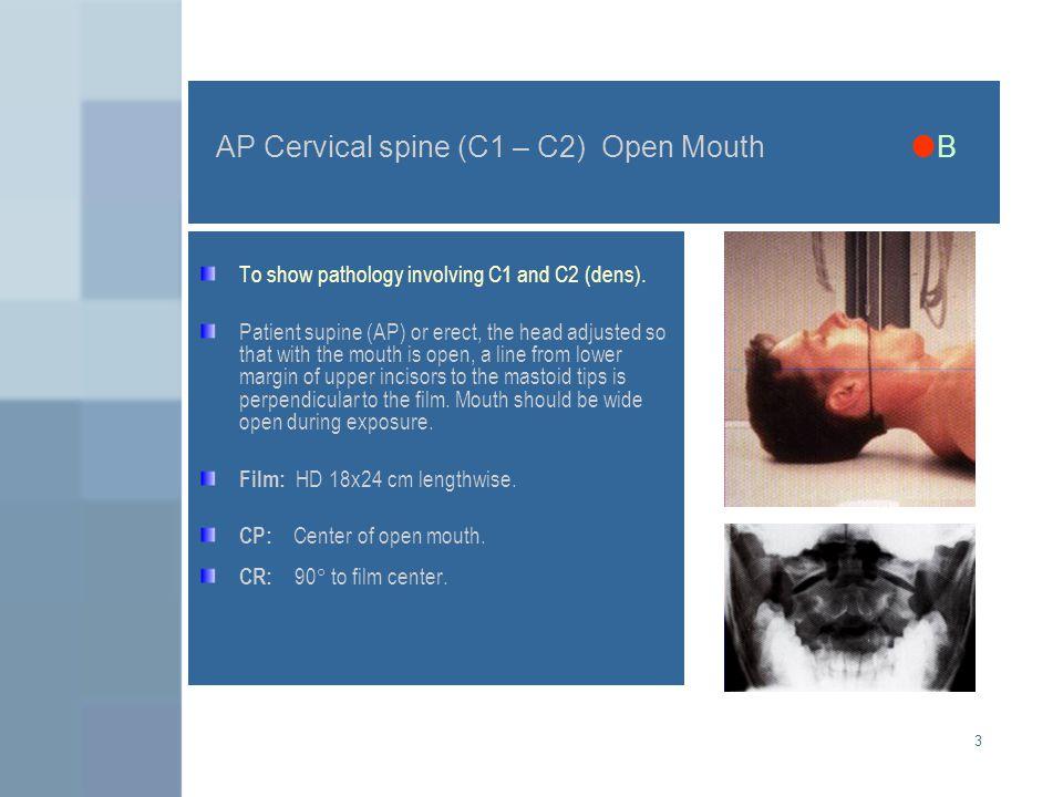 AP Cervical spine (C1 – C2) Open Mouth B