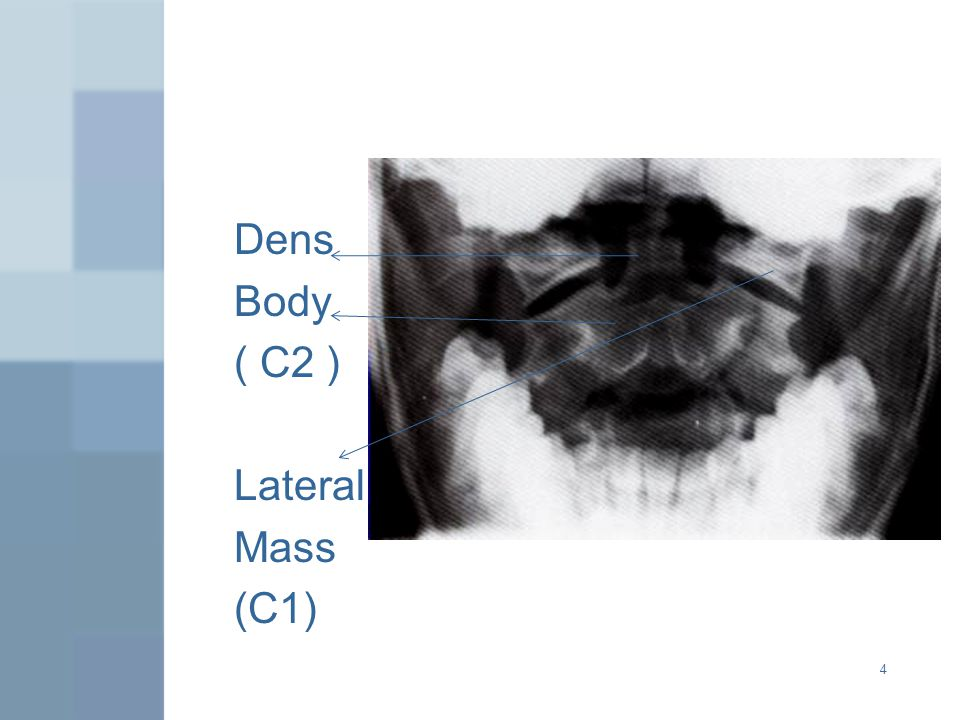 Dens Body ( C2 ) Lateral Mass (C1)