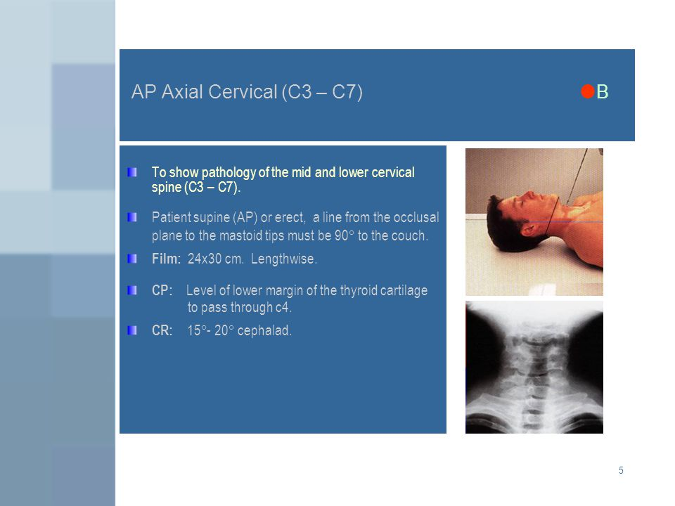 AP Axial Cervical (C3 – C7) B