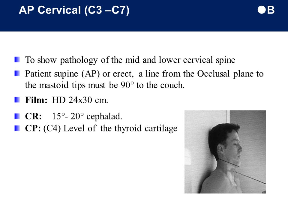 AP Cervical (C3 –C7) B To show pathology of the mid and lower cervical spine.