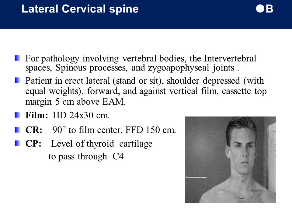 Lateral Cervical spine B
