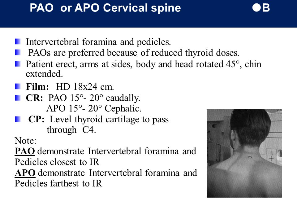PAO or APO Cervical spine B