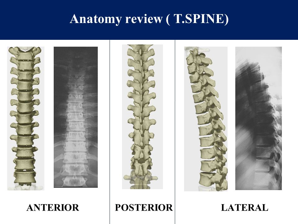 Anatomy review ( T.SPINE)