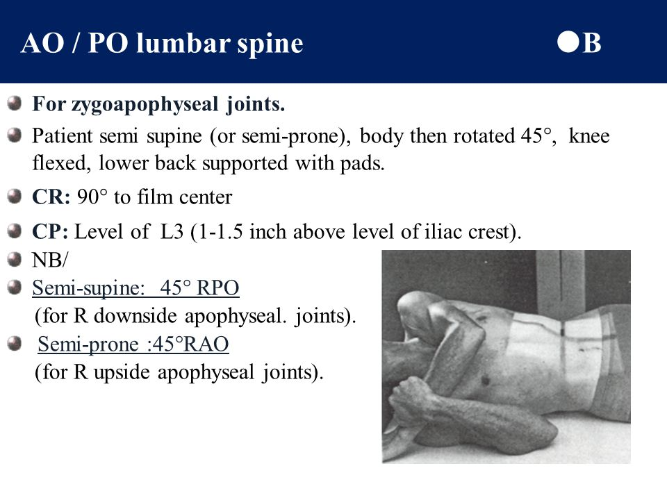 AO / PO lumbar spine B For zygoapophyseal joints.