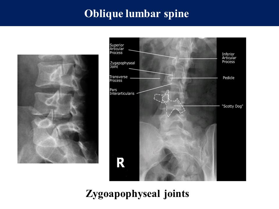 Oblique lumbar spine Zygoapophyseal joints
