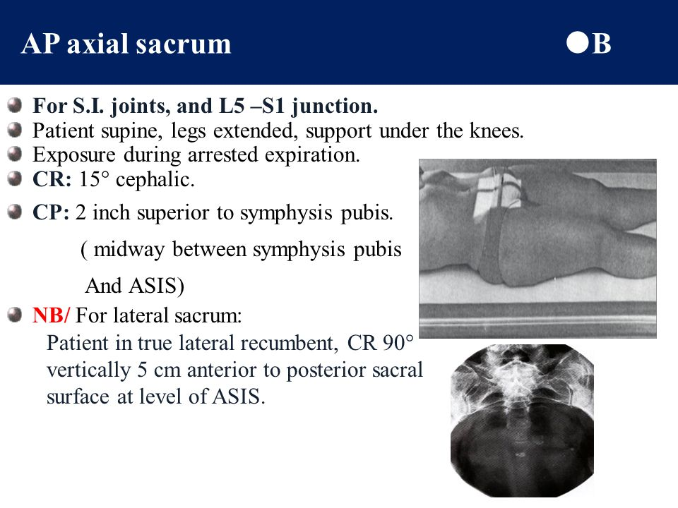 AP axial sacrum B For S.I. joints, and L5 –S1 junction.