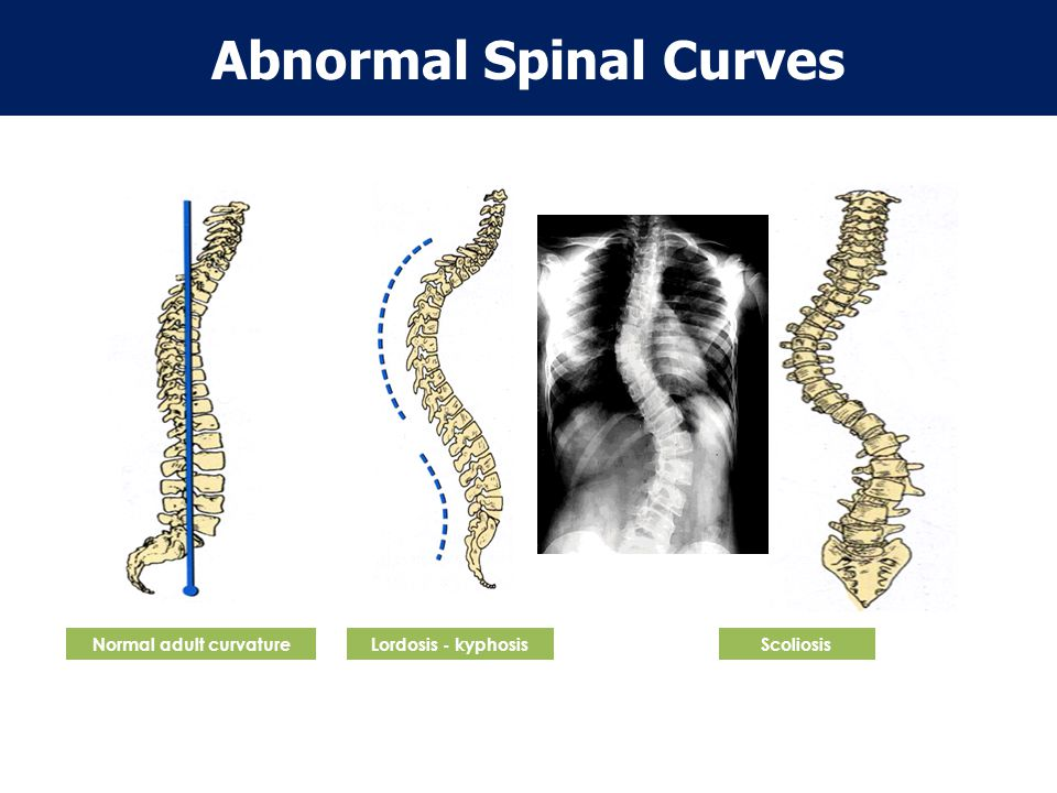Abnormal Spinal Curves Normal adult curvature
