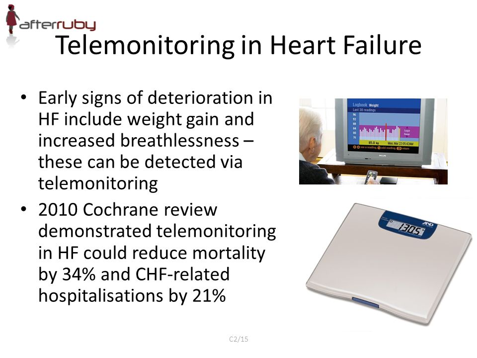 Telemonitoring in Heart Failure