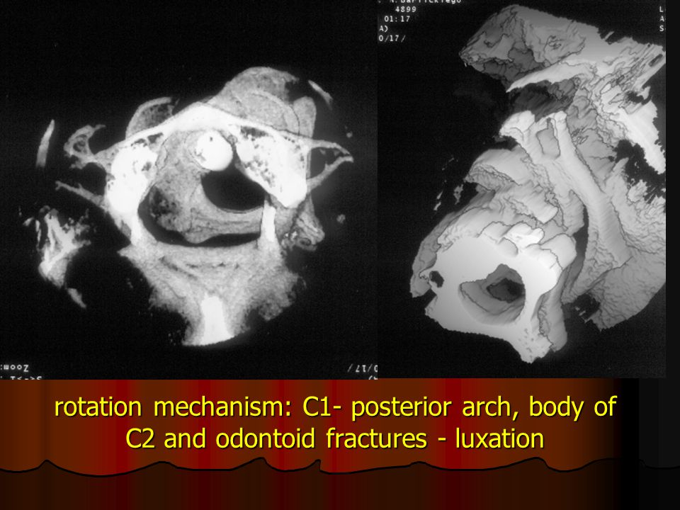 rotation mechanism: C1- posterior arch, body of C2 and odontoid fractures - luxation