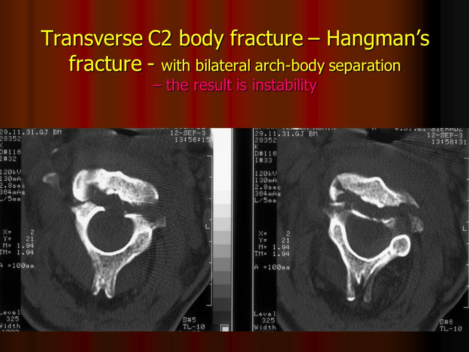 Transverse C2 body fracture – Hangman's fracture - with bilateral arch-body separation – the result is instability