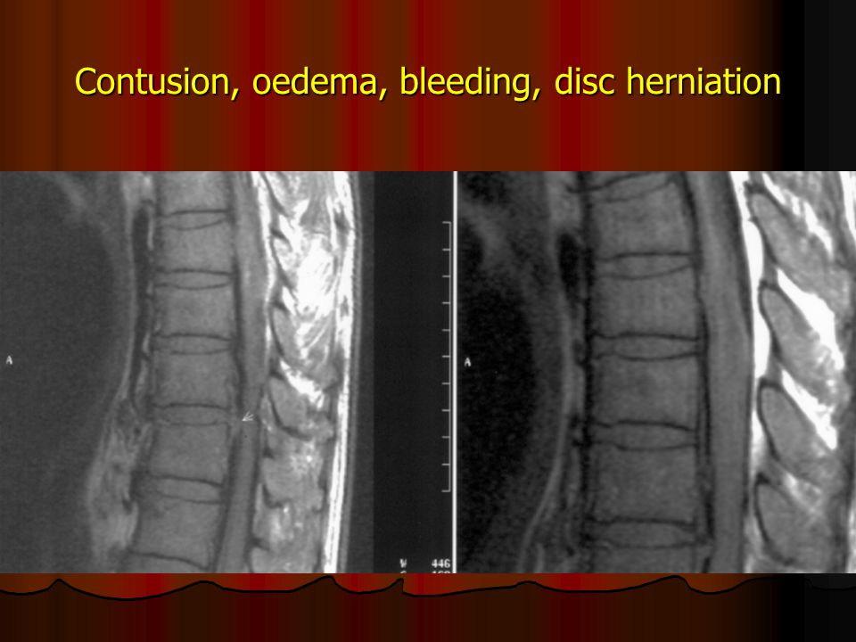 Contusion, oedema, bleeding, disc herniation