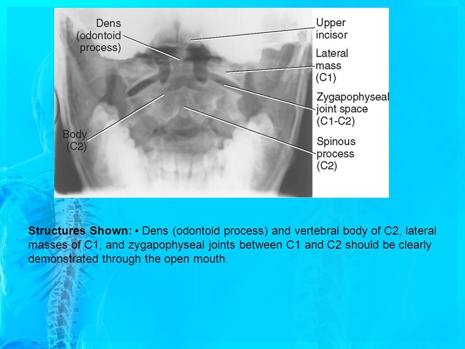 Structures Shown: • Dens (odontoid process) and vertebral body of C2, lateral masses of C1, and zygapophyseal joints between C1 and C2 should be clearly demonstrated through the open mouth.