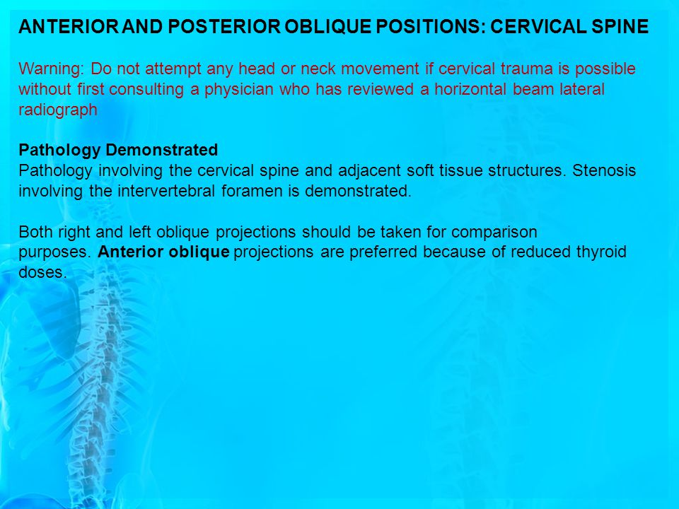 ANTERIOR AND POSTERIOR OBLIQUE POSITIONS: CERVICAL SPINE