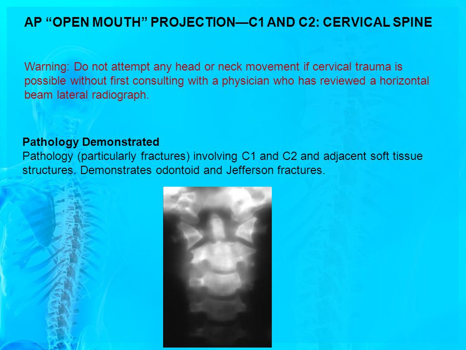 AP OPEN MOUTH PROJECTION—C1 AND C2: CERVICAL SPINE