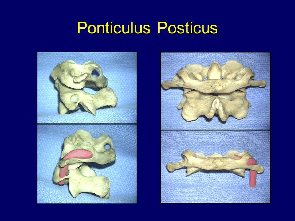 Ponticulus Posticus