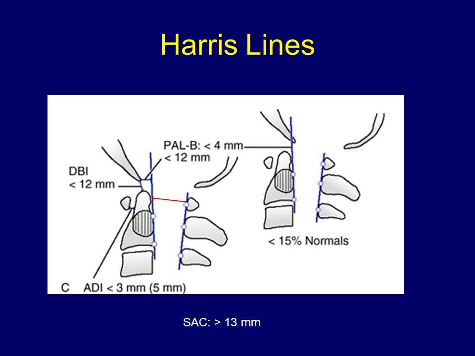 Harris Lines SAC: > 13 mm