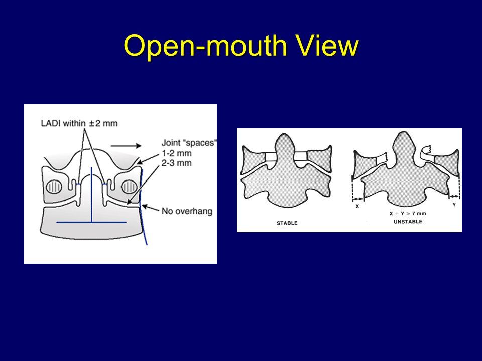 Open-mouth View