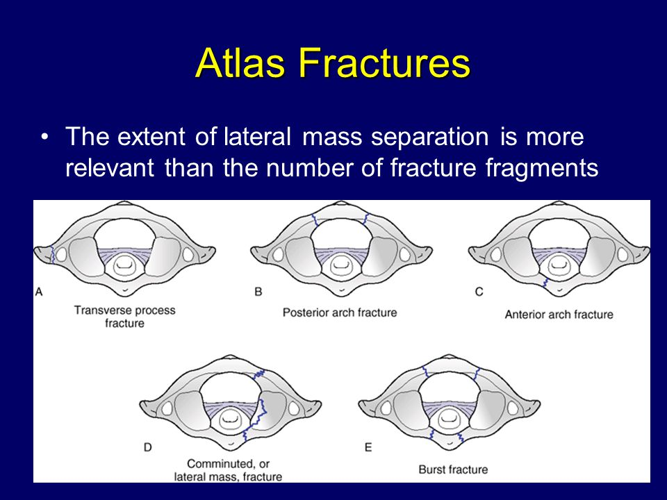 Atlas Fractures The extent of lateral mass separation is more relevant than the number of fracture fragments.