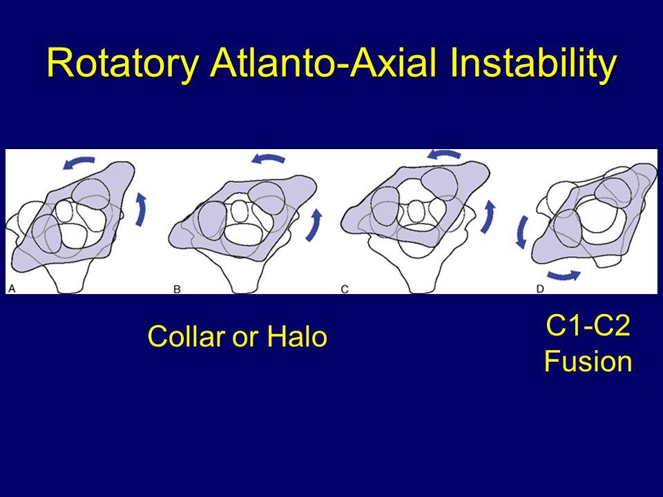Rotatory Atlanto-Axial Instability