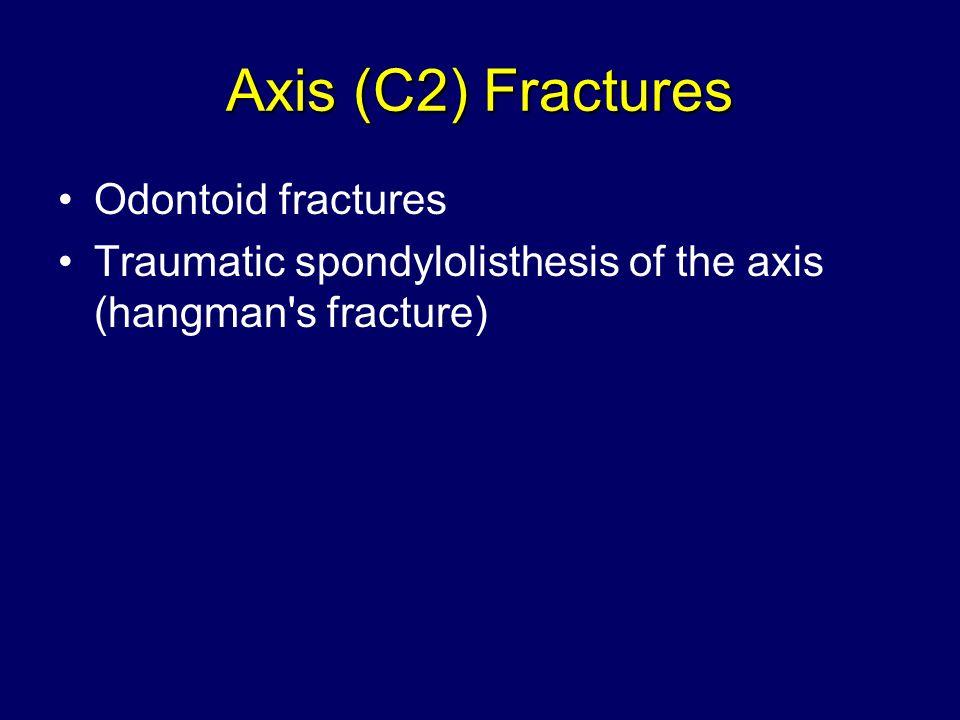 Axis (C2) Fractures Odontoid fractures