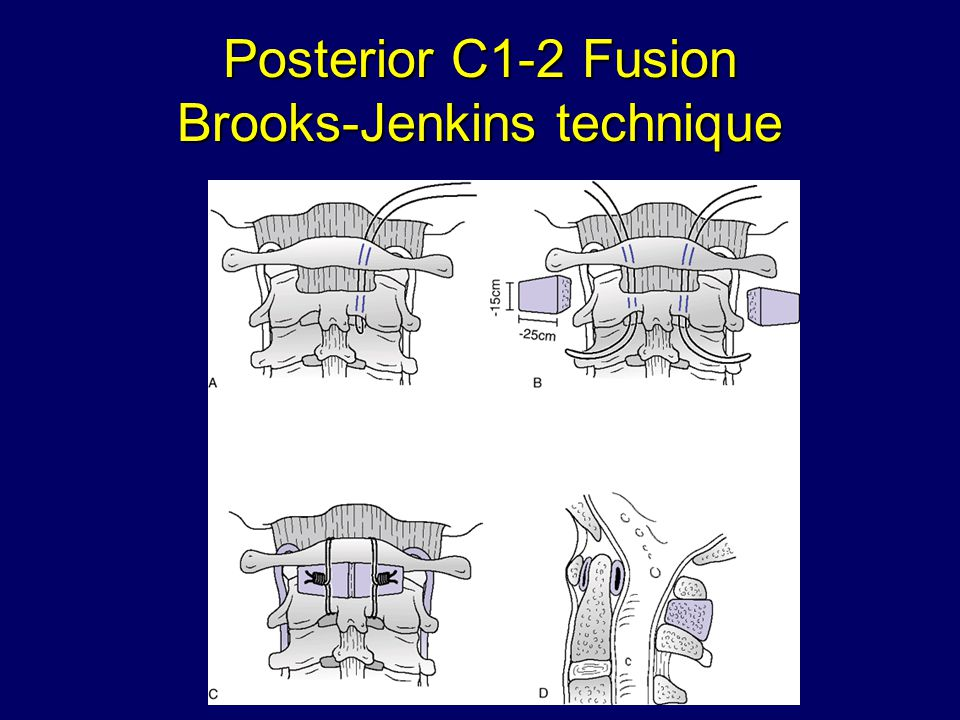 Posterior C1-2 Fusion Brooks-Jenkins technique