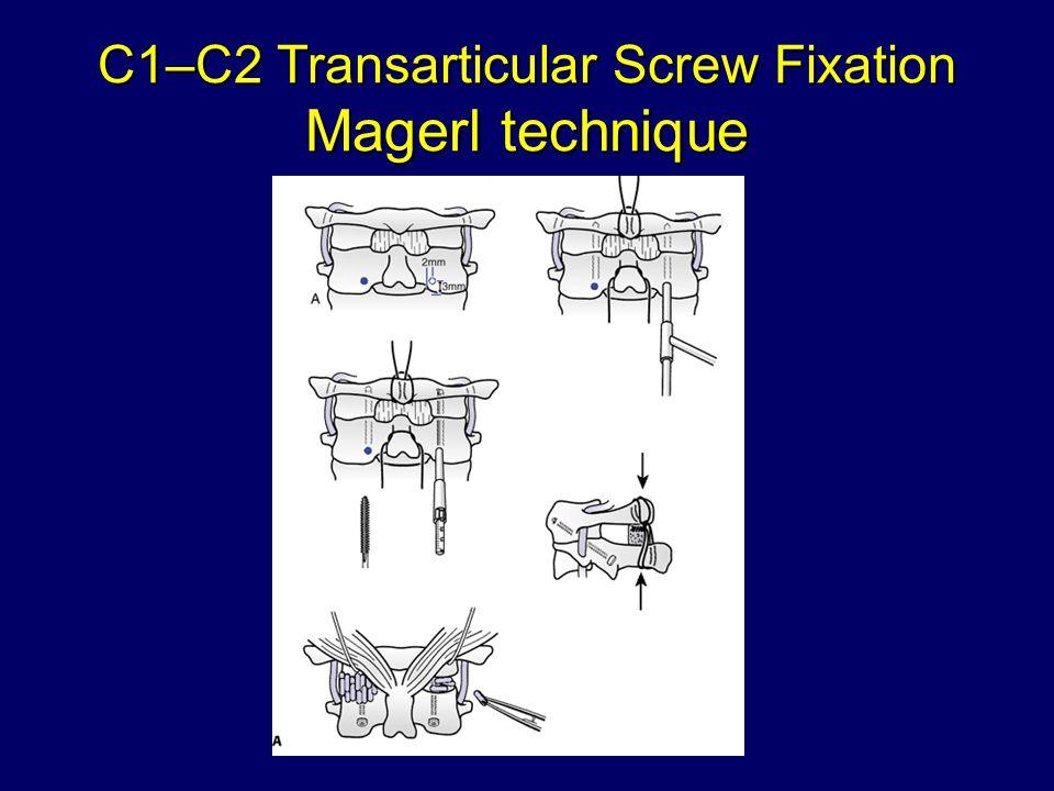 C1–C2 Transarticular Screw Fixation Magerl technique