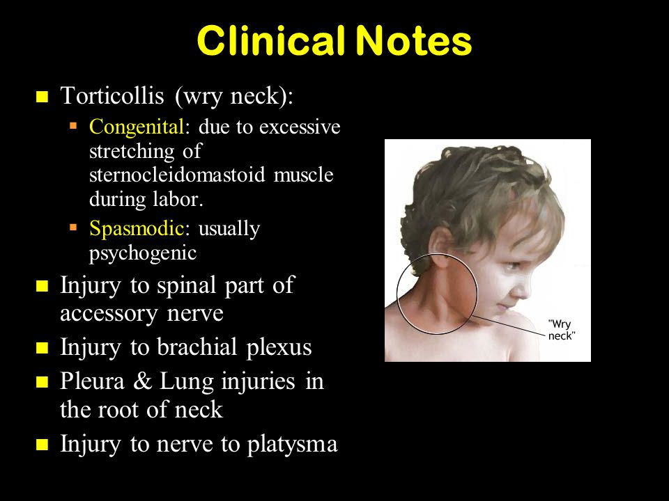 Clinical Notes Torticollis (wry neck):