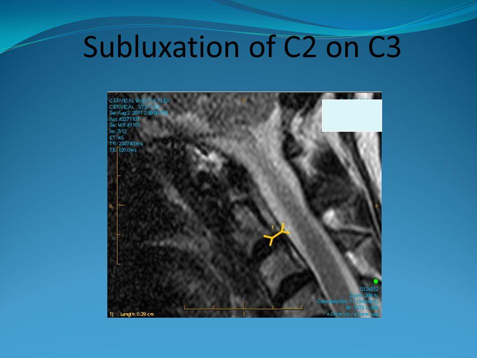 Subluxation of C2 on C3