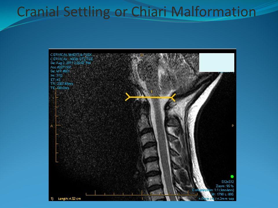 Cranial Settling or Chiari Malformation