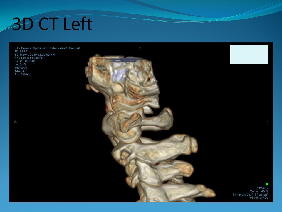 3D CT Left
