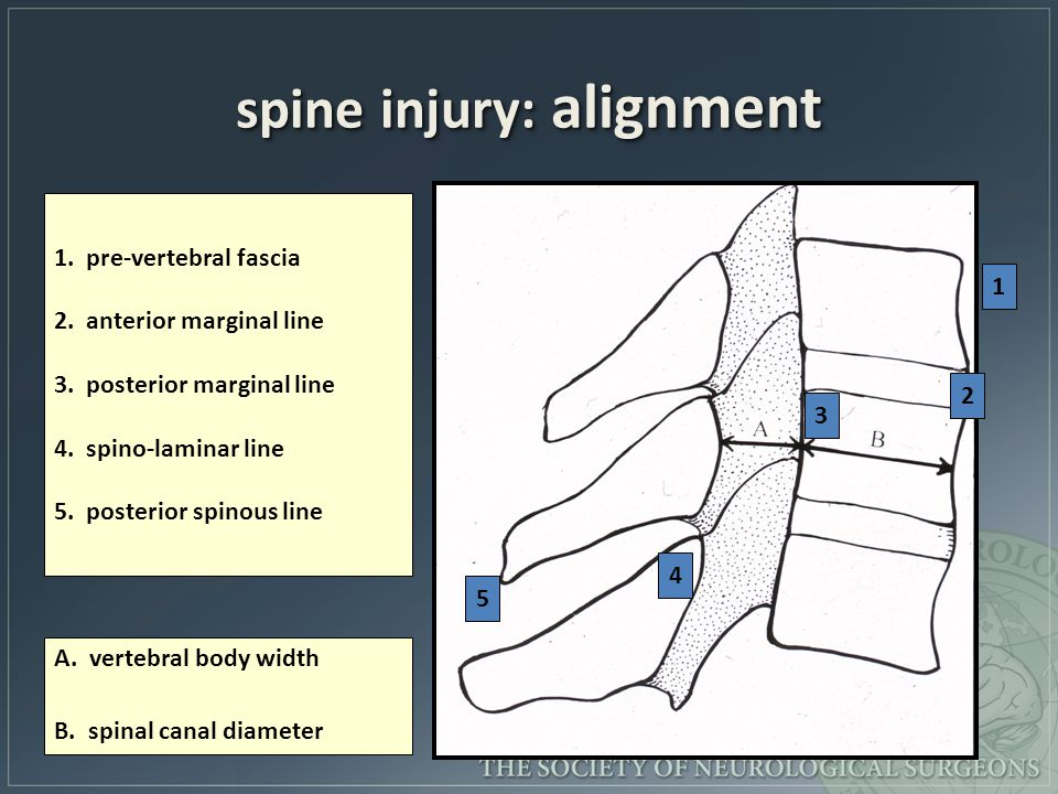 spine injury: alignment