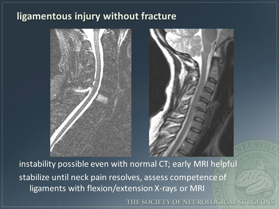 ligamentous injury without fracture