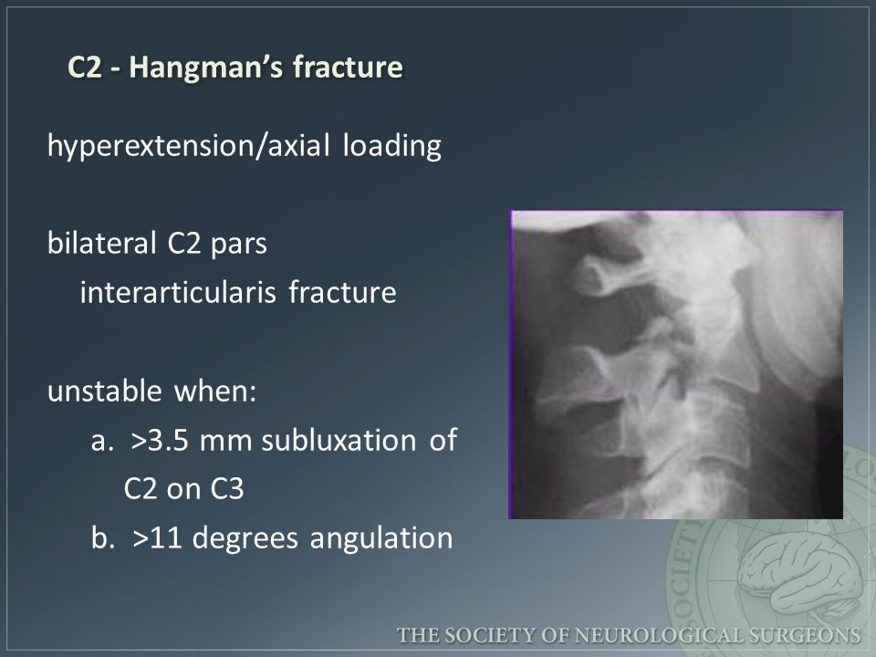 C2 - Hangman's fracture hyperextension/axial loading. bilateral C2 pars. interarticularis fracture.