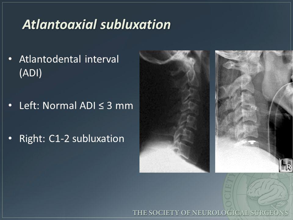 Atlantoaxial subluxation