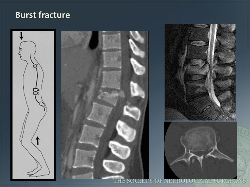 emergency spinal radiological assessment ppt video