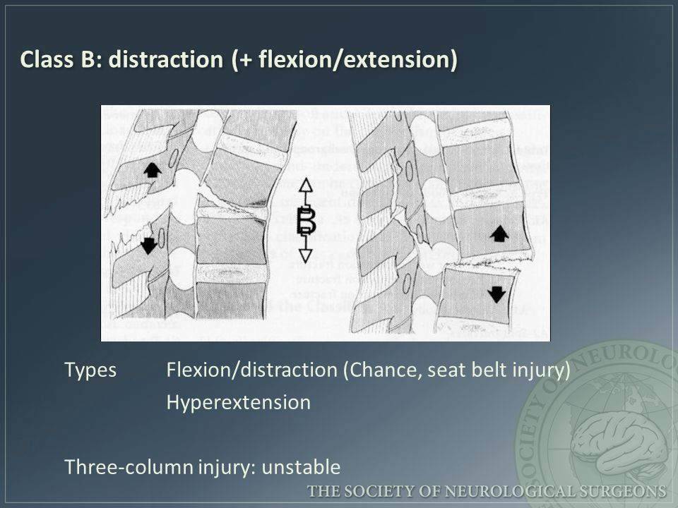 Class B: distraction (+ flexion/extension)