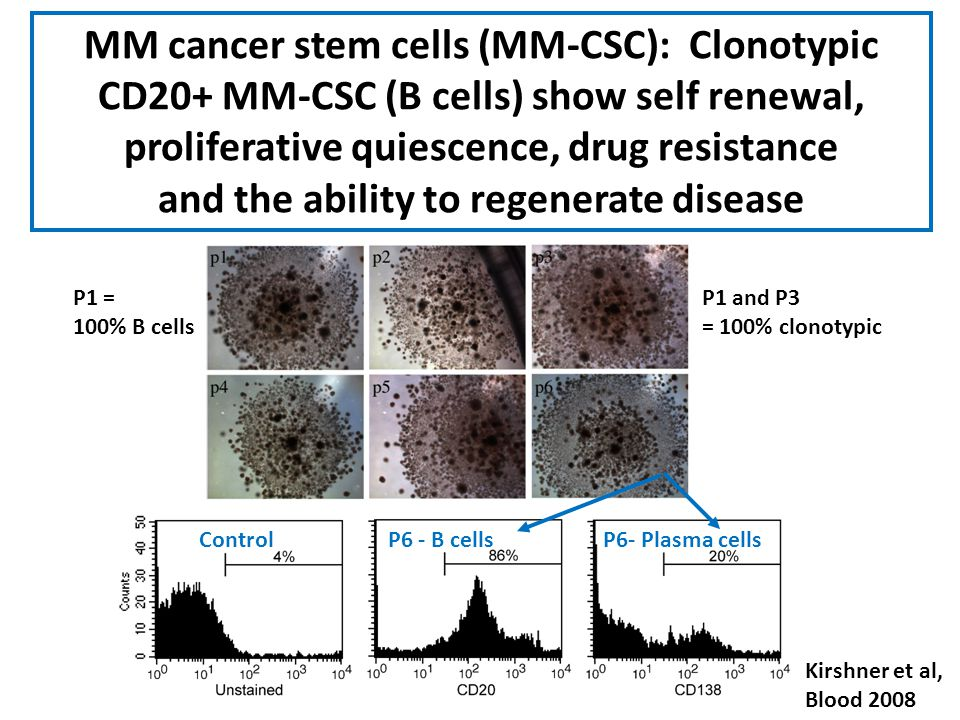 MM cancer stem cells (MM-CSC): Clonotypic