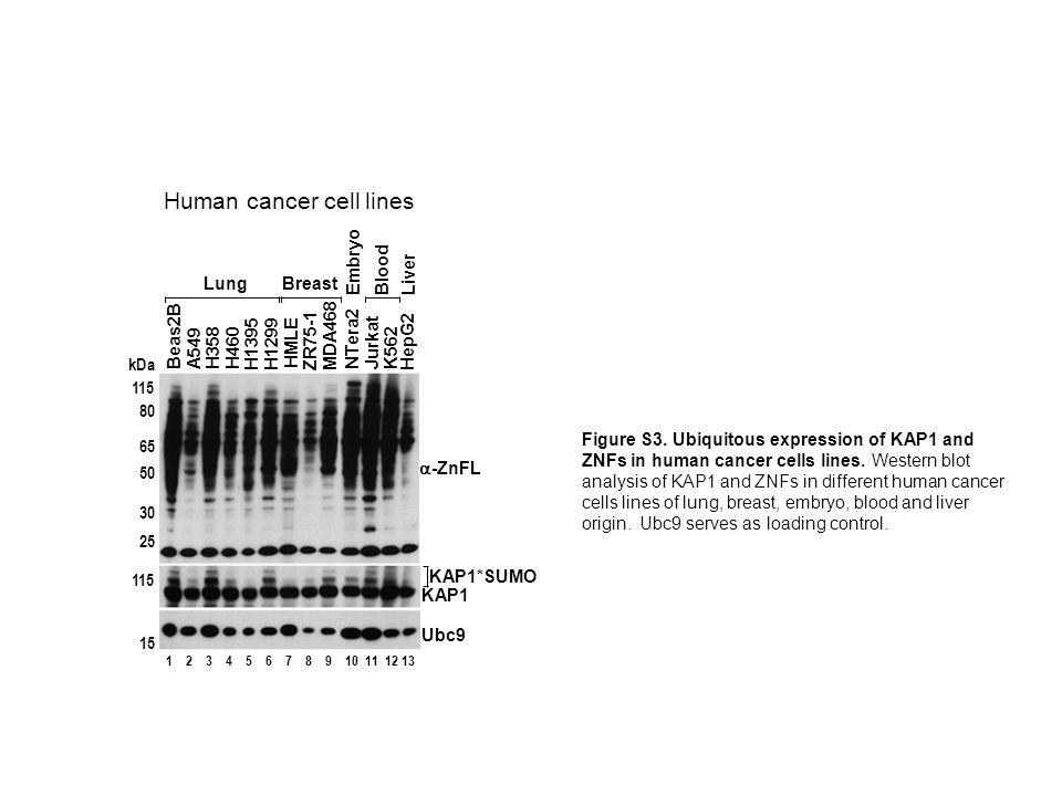 Human cancer cell lines