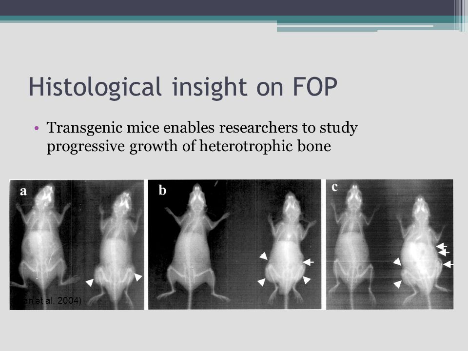 Histological insight on FOP