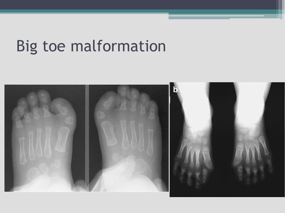 Big toe malformation Pictures might make you uncomfortable