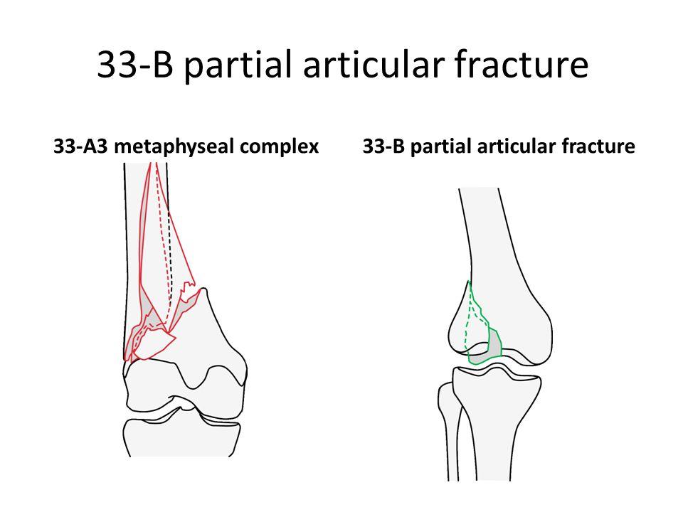 33-B partial articular fracture