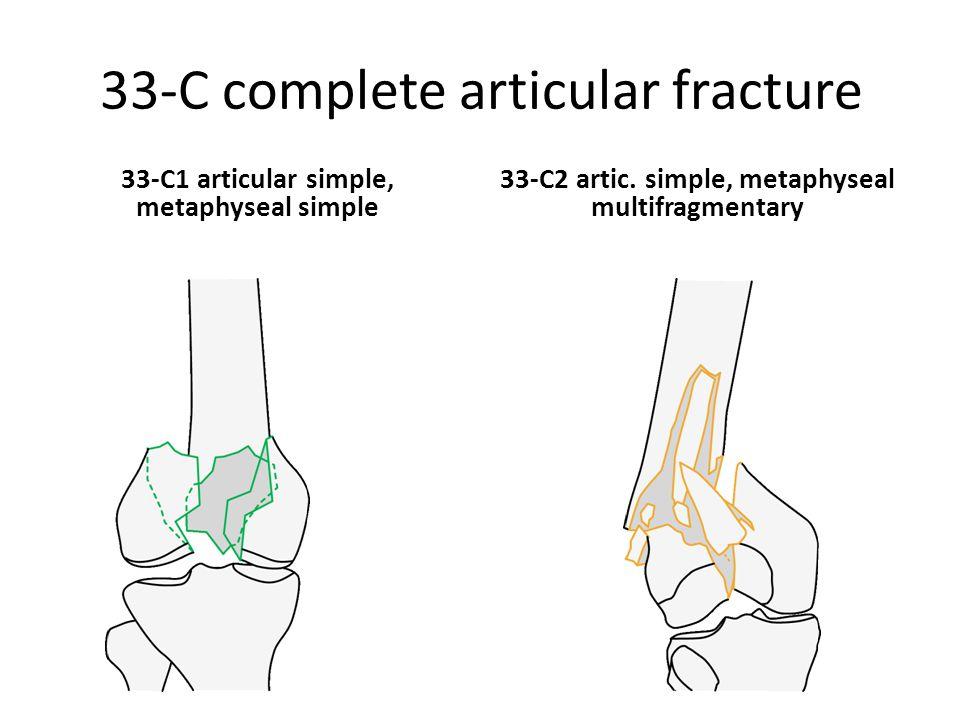 33-C complete articular fracture