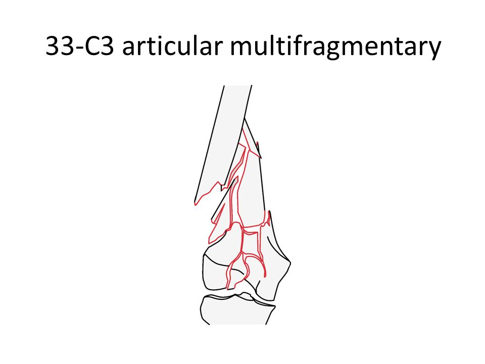 33-C3 articular multifragmentary