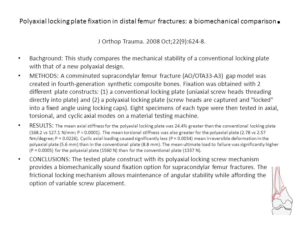 Polyaxial locking plate fixation in distal femur fractures: a biomechanical comparison. J Orthop Trauma. 2008 Oct;22(9):624-8.