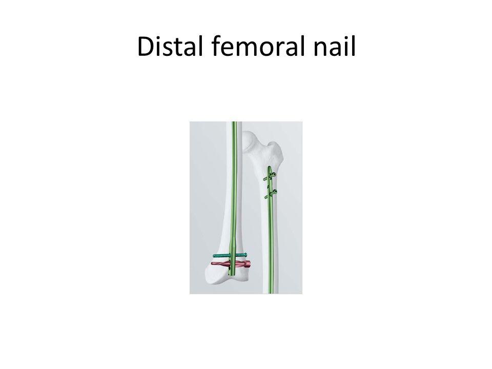 Distal femoral nail