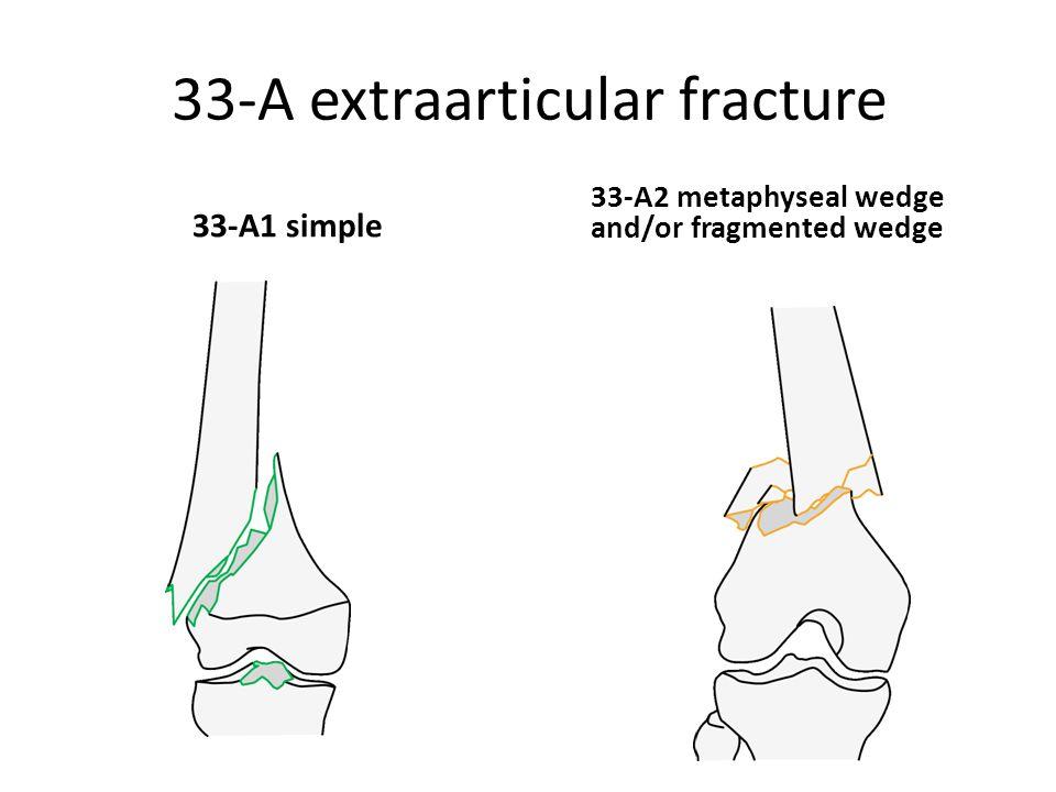 33-A extraarticular fracture