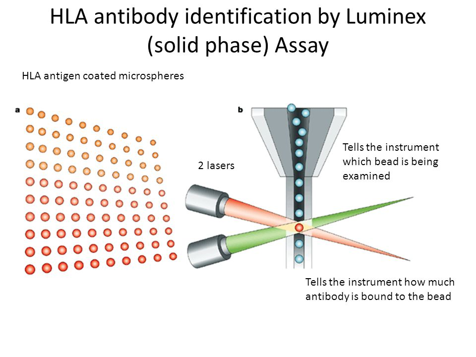 HLA antibody identification by Luminex