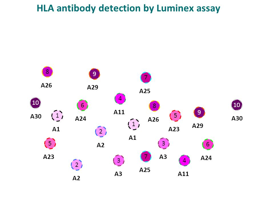 HLA antibody detection by Luminex assay