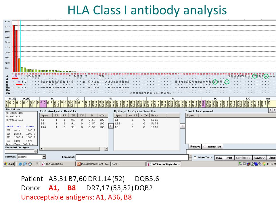 HLA Class I antibody analysis
