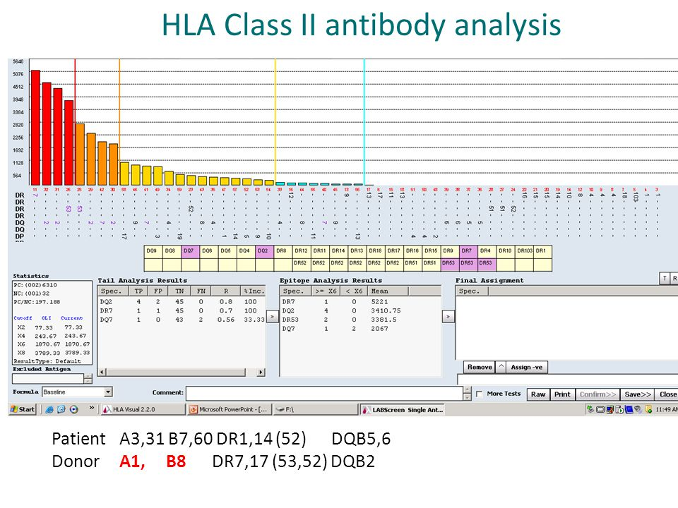 HLA Class II antibody analysis